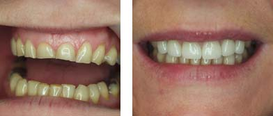 Before and After Veneers Treatment