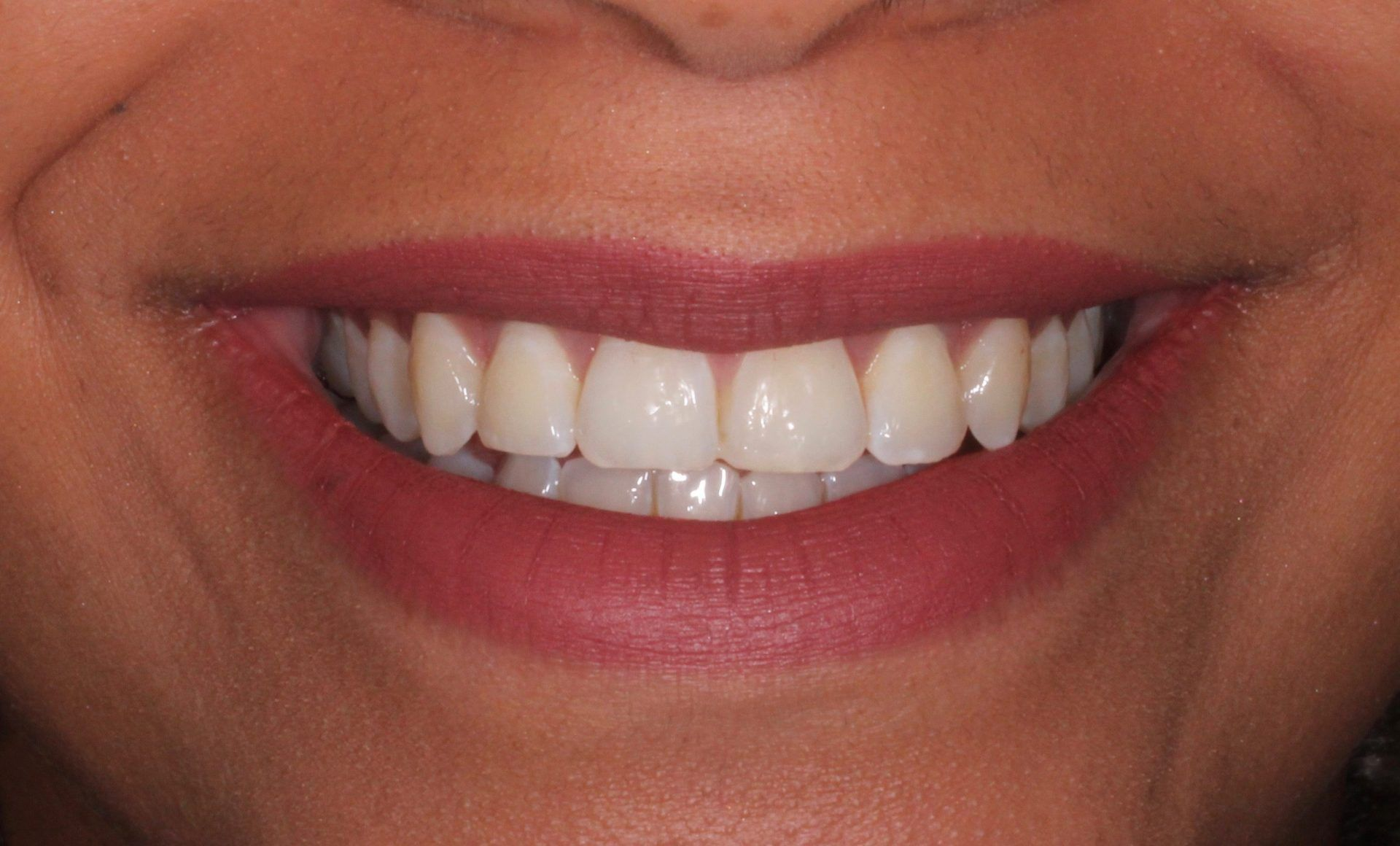 Beautiful smile after Damon Clear Braces