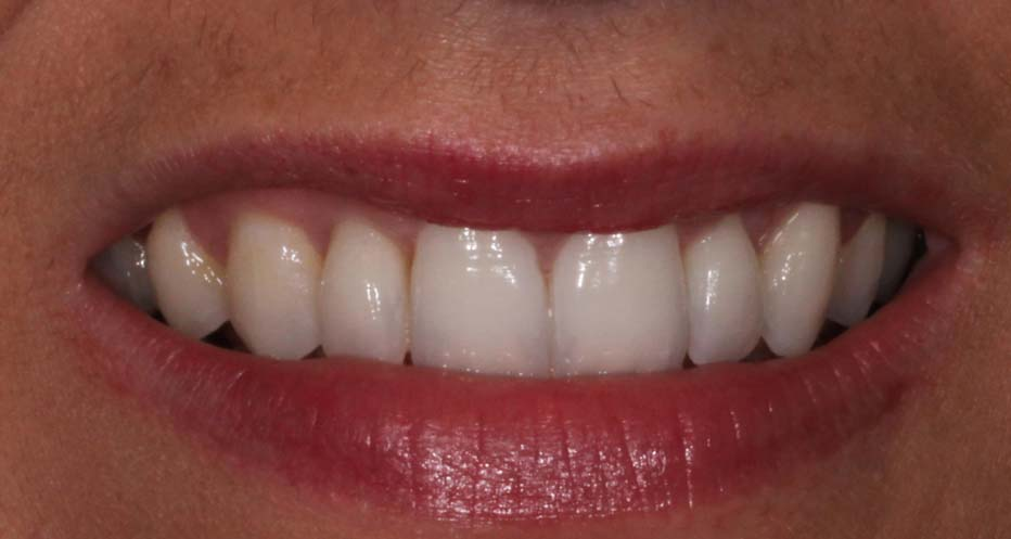 After-Invisalign Case 22