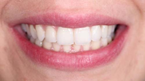 After-Invisalign Case 1